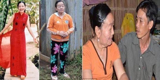 Wajah Nguyen Thi Phuong berubah menjadi bengkak dengan kulit kendur.